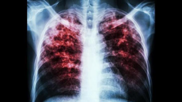 Alerta SSa sobre incremento de tuberculosis en Tabasco