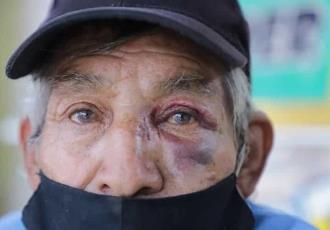 Asaltan y golpean a Don Javier, el abuelito que vende dulces en Tierra Colorada